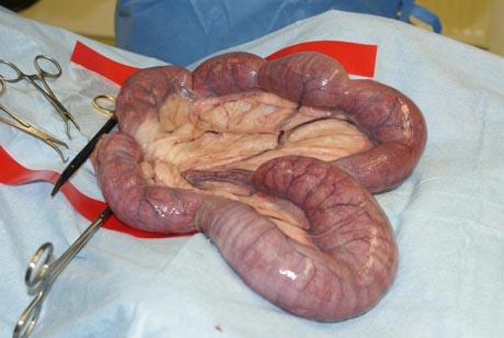 wie sieht eine gebärmutter aus